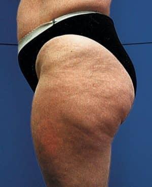 Cellulit w stadium zaawansowanym
